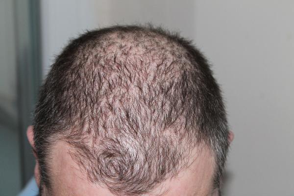 specjaliści od włosów